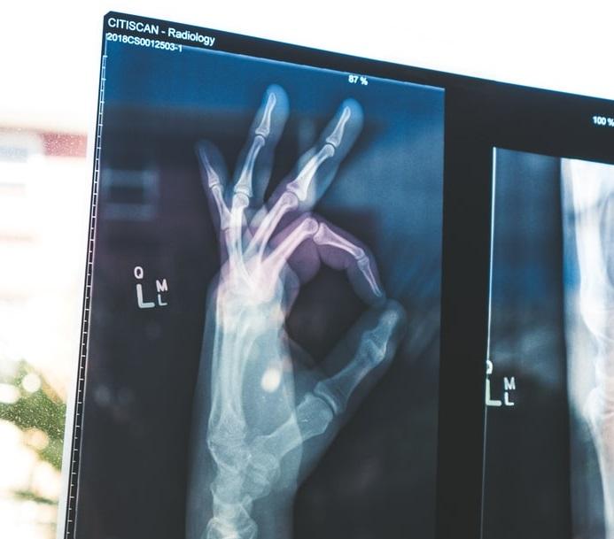 ilustračné foto - rontgenová snímka ruky